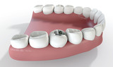 Teeth With Lead Filling