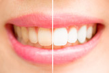 Fototapety Close-up teeth female between before and after brush the teeth.