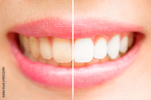 Close-up teeth female between before and after brush the teeth. - 88252089