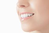 Fototapety Donna con sorriso denti bianchi