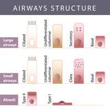 Airways structure