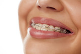 Fototapety smiling female mouth with braces on her teeth