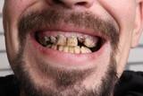 Fototapety Bad teeth smoker sick