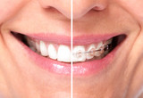Fototapety Healthy woman teeth.