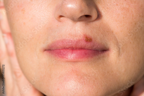 Herpes labialis: oral herpes on upper lip of a woman Poster