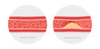 Постер, плакат: Healthy and atherosclerosis vessels with blood cells vector illustration
