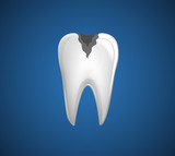Dental Problem. Tooth with caries.