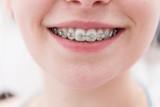 lachender Mund eines Mädchens mit Zahnspange - 97854449