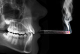human radiography smoking