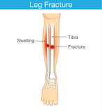Diagram of leg have bone fracture. This illustration have description of inner leg composition.