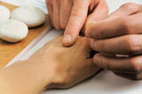 Acupuncture.Chinese medicine treatmen
