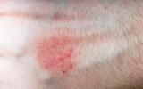 Allergic rush or aczema on skin.