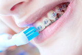 Fototapety Beautiful smiling girl with retainer for teeth brushing teeth .