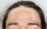 Junge Frau mit Pigmentflecken auf der Stirn - 108995281