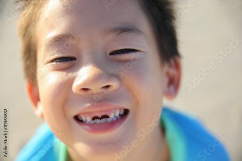Poster boy losing front teeth, happy smile,oral health