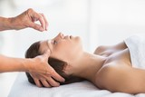 Woman receiving acupuncture treatment  - 114177671
