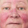 Elderly woman with rosacea, facial skin disorder
