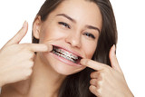 Fototapety Face of a young woman with braces on her teeth