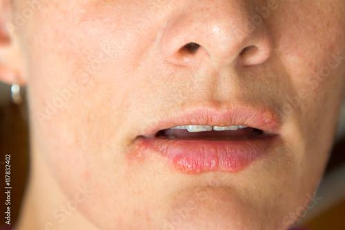 Lippenherpes Poster