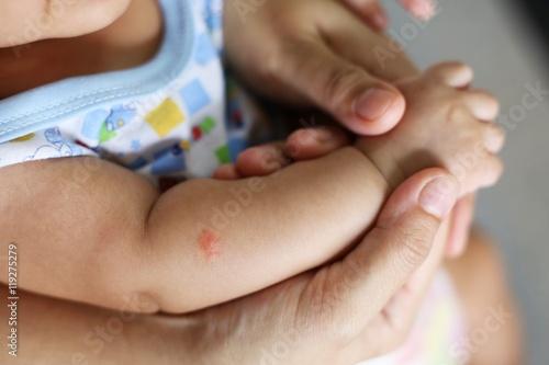 Mosquito sucking blood on child skin - 119275279