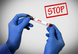 Stop BPH (benign prostatic hyperplasia)
