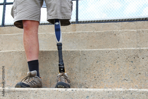 Standing man with prosthetic leg, detail