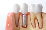 Fototapety Generic dental teeth model