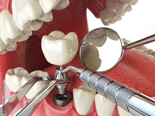 Tooth human implant. Dental implantation concept. Human teeth or - 123127657