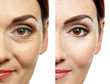 Leinwanddruck Bild - Woman face before and after cosmetic procedure. Plastic surgery concept.