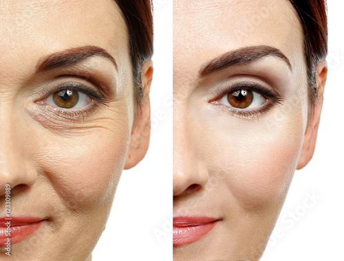 Leinwanddruck Bild Woman face before and after cosmetic procedure. Plastic surgery concept.