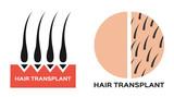 hair transplantation icon logo and vector , black hair