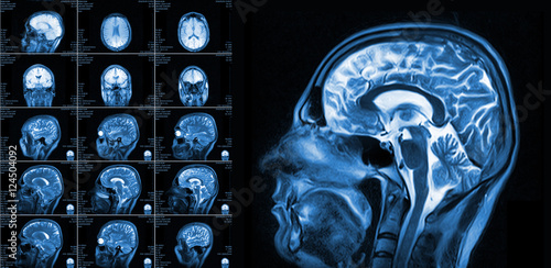 Magnetic resonance imaging of the brain Poster
