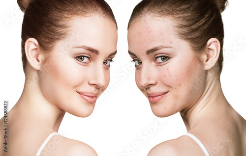 Girl with acne before and after treatment Poster