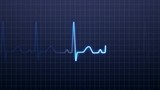 Looping EKG Animated Background