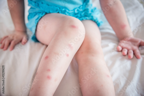 Mosquito bites sore and scar on child legs - 132186211