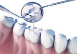 Zahnuntersuchung - Vorsorge 2