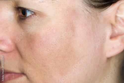 Junge Frau mit Pigmentflecken auf den Wangen Poster
