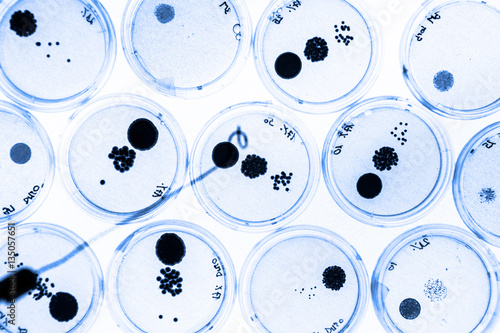 microbes petri dish experiment lab report Lab report - microbes aim: to investigate four areas of the school and to find out which of the four have the most microbes areas to sample: 1.