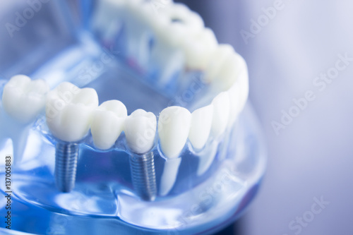 Dental teeth dentistry model - 137005883