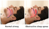 Fototapety Snore problem concept. Illustration of normal airway and obstructive sleep apnea