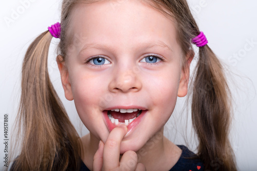Poster Child girl dropped the first milk tooth - preschooler girl with open mouth witho