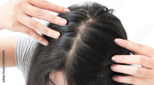 Woman serious hair loss problem for health care shampoo and beauty product concept © mraoraor