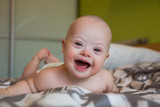 Portrait of cute baby boy with Down syndrome - 141281086