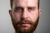 Close Up of a Crying Man with Red Beard - 141389887