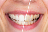 Fototapety Whitening - Dental care, a beautiful smile and teeth whitening treatment before and after.