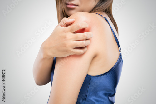 People scratch the itch with hand, Upper arm, itching, Healthcare And Medicine, Beautiful girl woman with skin problem concept - 144159272