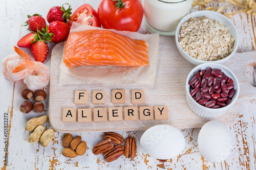 Food allergies - food concept with major allergens - 155822272