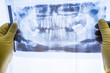 Full mouth panoramic in X-ray, showing all the teeth. Doctor studying dental x-ray scan on light. Panoramic x-ray of human jaw