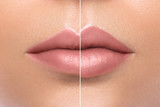 Comparison of female lips after augmentation - 162246492