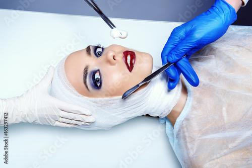 facelift medical surgery